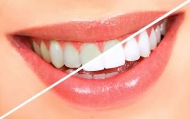 Протезирование зубов и отбеливание Air Flow
