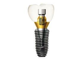 Имплантаты системы HI-TEC implants, «MIS» (Израиль)